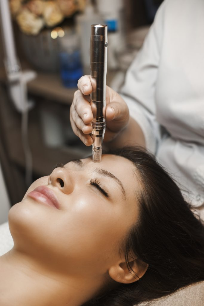 A woman getting microneedling